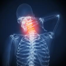 Neck pain from cervical ostgeoarthritis can be deep and constant, and easily aggravatged