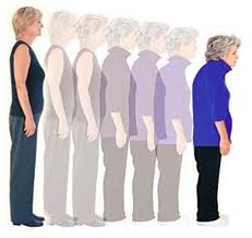 Osteoporosis causes bones to slightly compress and over time results in lost height