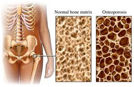 Osteoporosis or weakening of bone tissue occurs when bone replacement does not keep up with bone loss