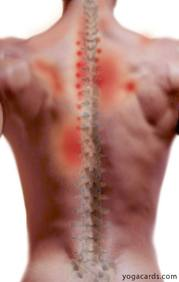Upper back pain can be caused by spinal problems above and below the area of complaint