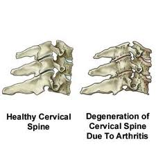 Cervical spondylosis is a common problem of wear and tear arthritis in the neck