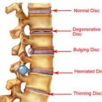 Difference between bulging disc and herniated disc comes down to conditon of the nucleus pulposus to cause low back pain
