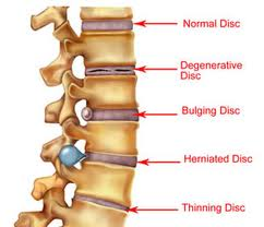 pain is a big difference between bulging disc and herniated disc, Cephalic Vein
