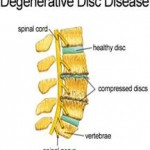 Degenerative disc disease is part of the natural aging response to prolonged and frequent injury to the spine from the usual activities of life.