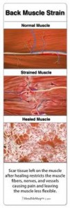 Pulled muscle tissue looks very much like a torn muscle when examined, and causes back pain and muscle spasms