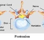 Disc hernation that presses upon spinal nerve roots in the low back cause lower back pain and numbness.