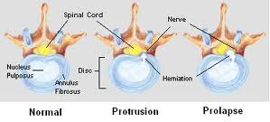 How does a herniated nucleus pulposus (disc) cause spinal pain ...