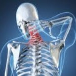 Crick in neck causes neck pain and neck stiffness as a way to protect nerves from injury
