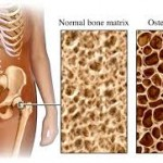 Osteoporosis definition stresses bone thinness and weakness