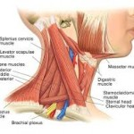 Pulled muscle in neck
