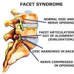 Sudden back pain is common in a facet syndrome when a person twists and bends at the same time.